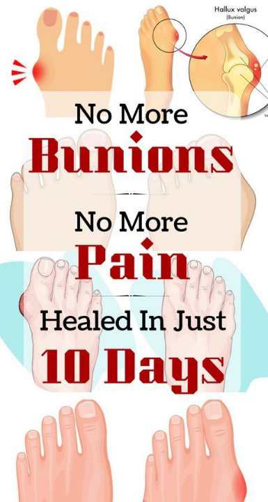 Bunions home natural remedies