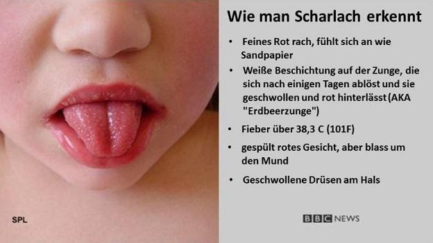 Natural Remedies for Scarlet Fever German