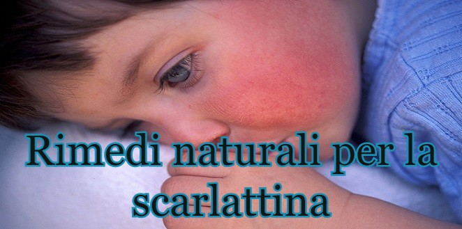 Natural Remedies for Scarlet Fever - Italian