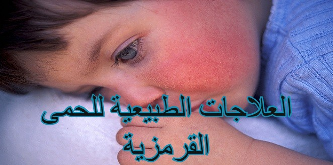 Natural Remedies for Scarlet Fever- arabic