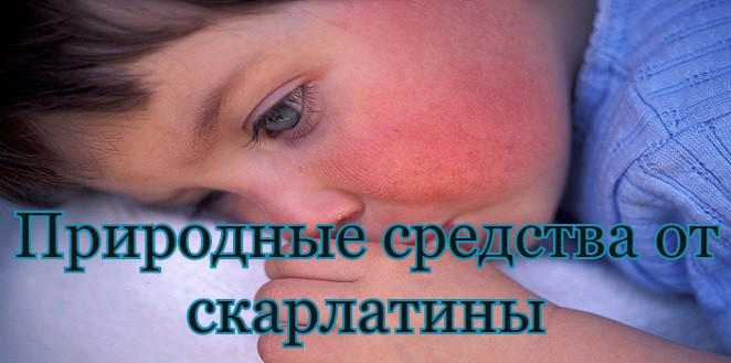 Natural Remedies for Scarlet Fever e russian